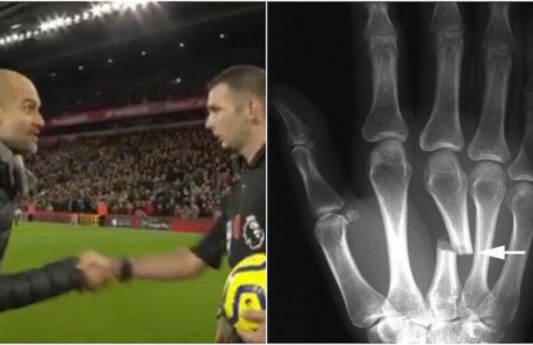 Guardiola Oliver broken hand